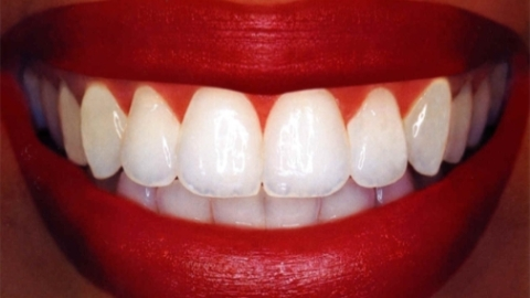 Sparkling Smile: 5 Good and Bad Things For Your Teeth | StyleCaster
