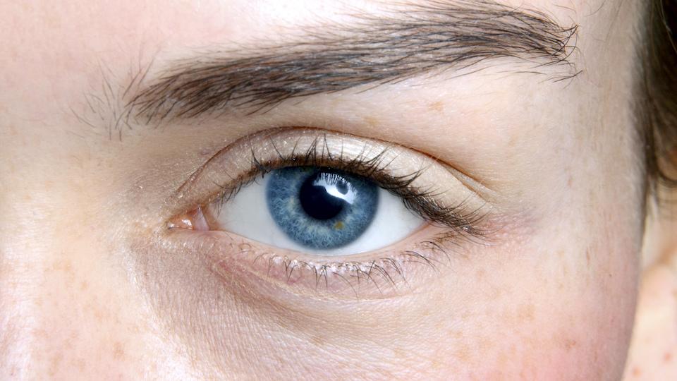 Under Eye Bag Fixes: A Dermatologist Weighs In