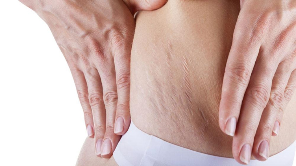How to Get Rid of Stretch Marks | StyleCaster
