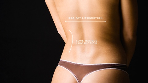 What a Butt Lift Consultation is Like | StyleCaster