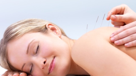 How Acupuncture Really Feels and What it Can Do For You | StyleCaster