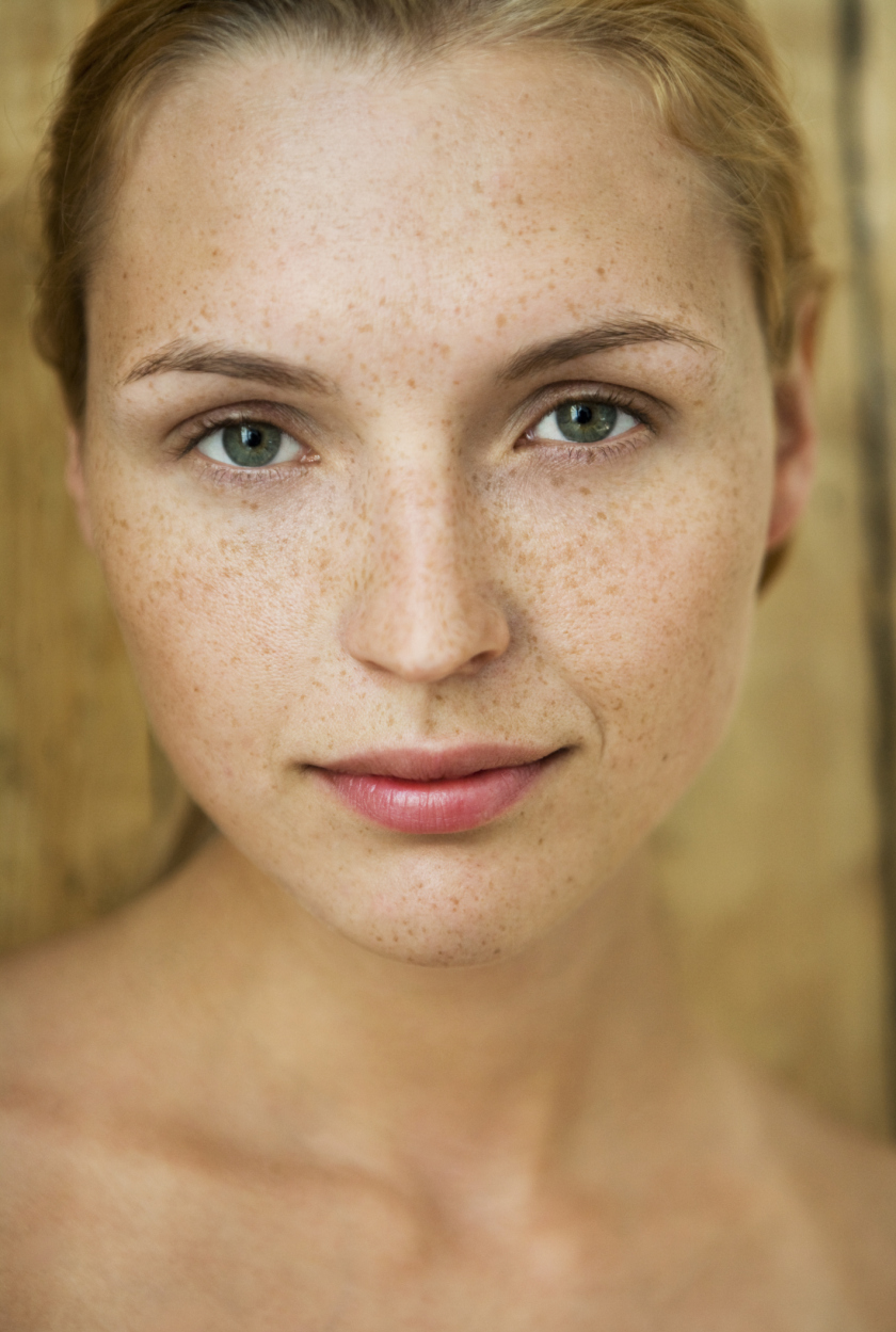 How to Get Rid of Dark Circles Under Your Eyes: 10 Easy Tips