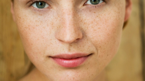 10 Tricks to Learn How to Get Rid of Dark Circles Under Your Eyes | StyleCaster