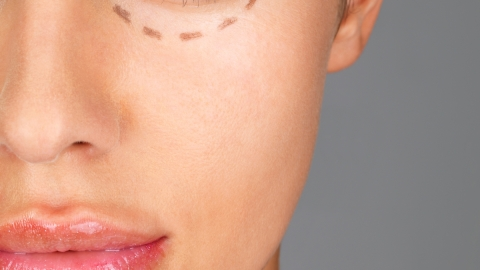 Social Media is Now Contributing to the Growing Plastic Surgery Craze   StyleCaster