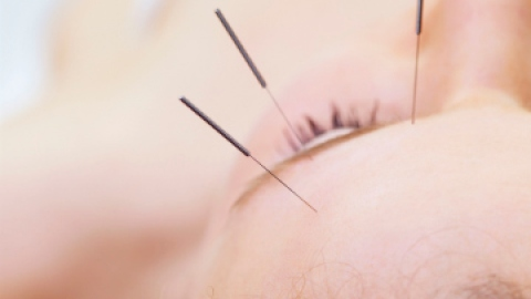 Does Acupuncture for Weight Loss Work? | StyleCaster