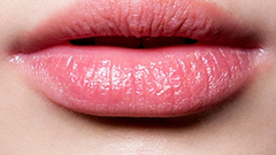 How to Cure Chapped Lips for Good | StyleCaster