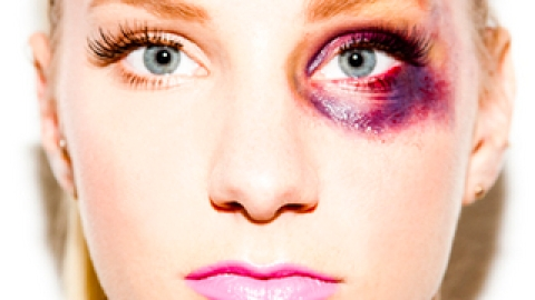 Battered, Bruised And…Beautiful? | StyleCaster