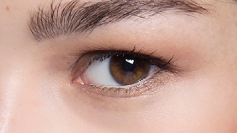 5 Things That Cause Under Eye Circles   StyleCaster