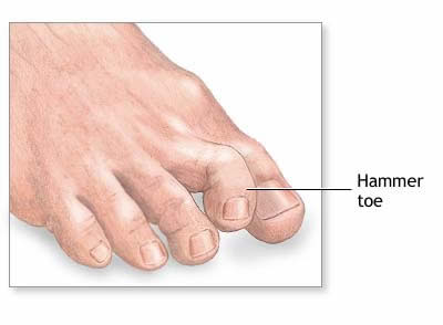Bradenton Foot
