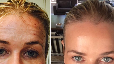 This Laser Treatment Has Crazy Results, and Here's the Pic to Prove It | StyleCaster