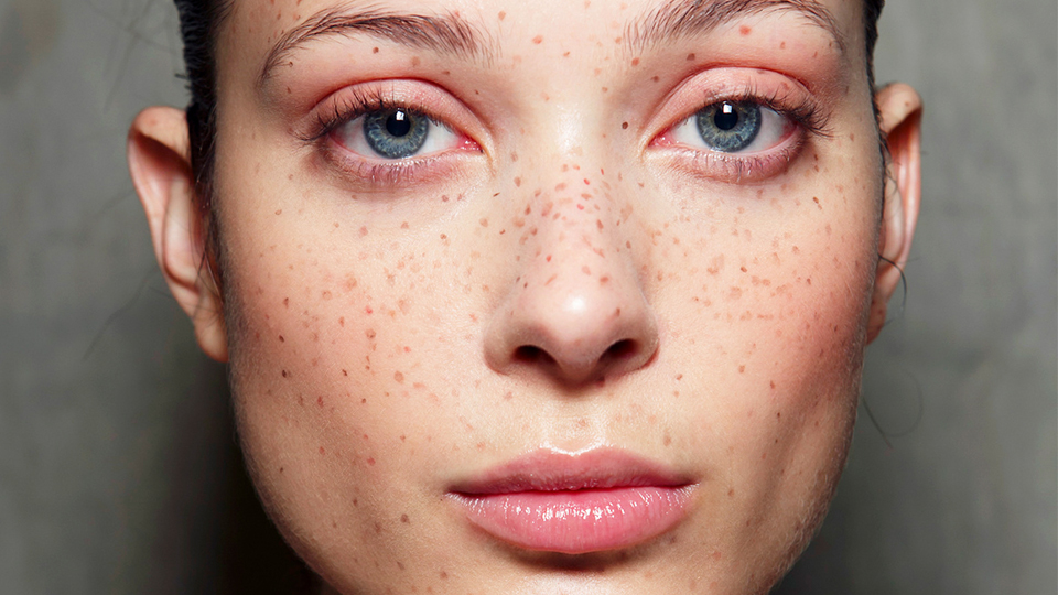 People Are Tattooing Freckles on Their Face, and This Is What It Looks Like