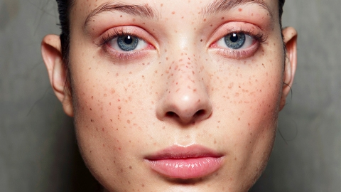 Uh, People Are Now Tattooing Freckles on Their Face | StyleCaster
