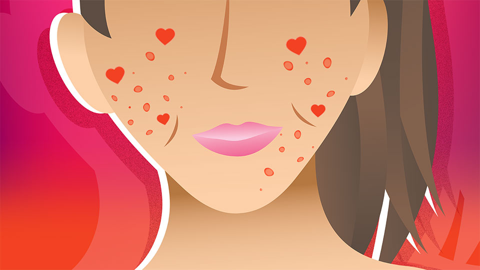 How I Learned to Love My Skin Without an Acne 'Success Story'