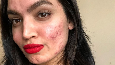 L'Oréal Allegedly Fired Beauty Blogger Because of Her Acne | StyleCaster