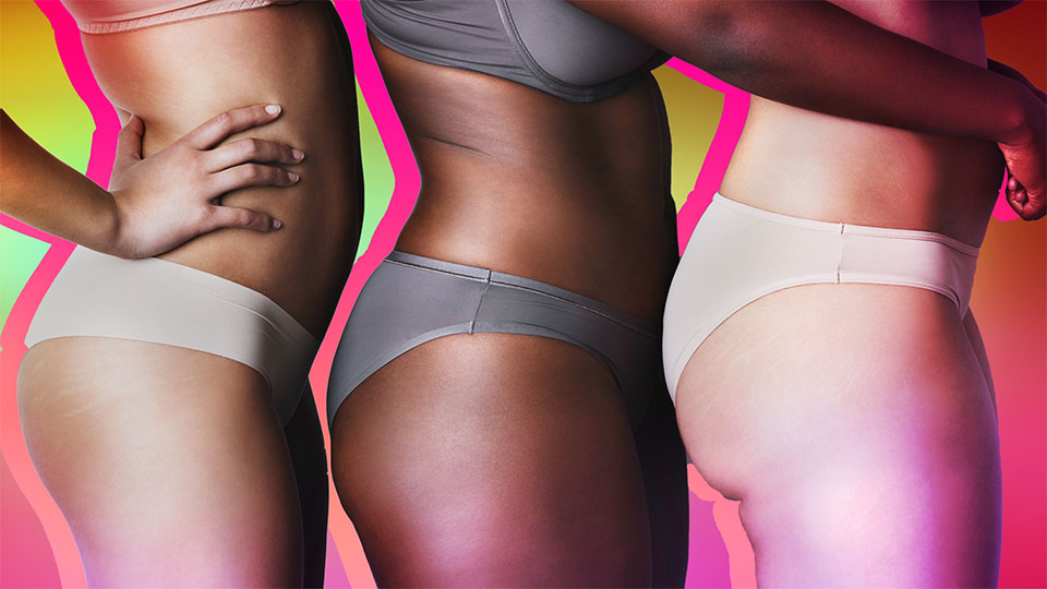 Do Weird Cures for Cellulite Actually Work?