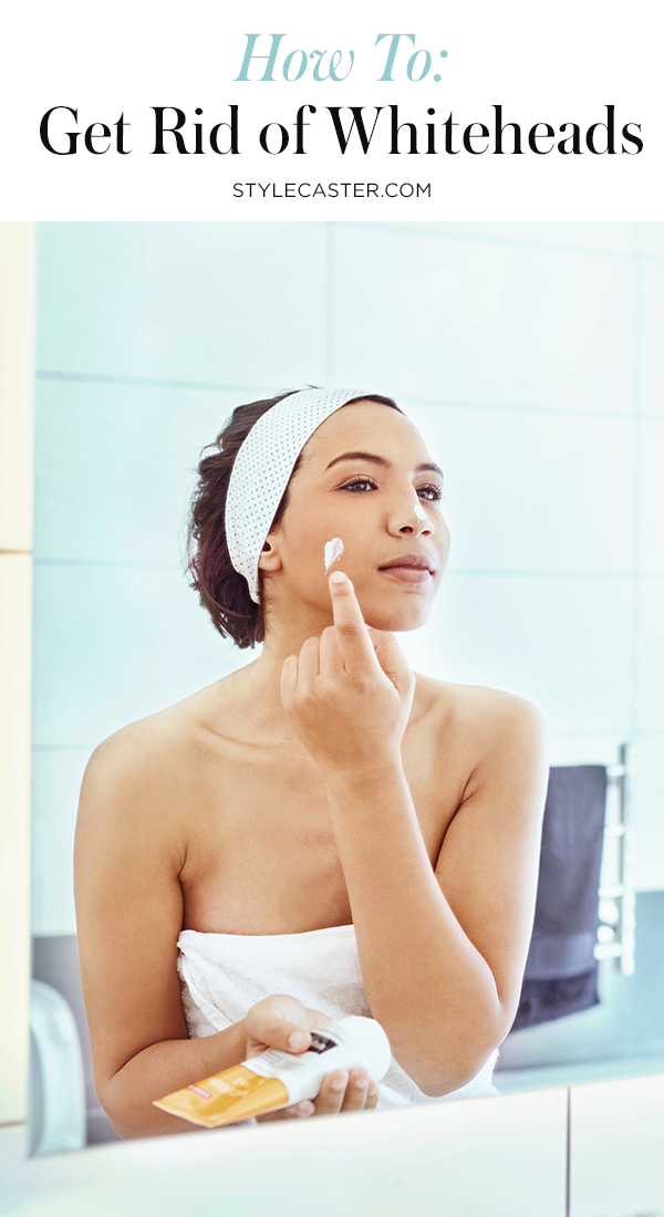 STYLECASTER | How to Get Rid of Whiteheads | Pin it!
