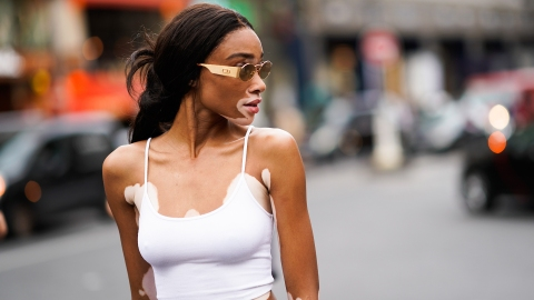 Winnie Harlow Shuts Down Dude Who Accused Her of Leaking Nudes | StyleCaster