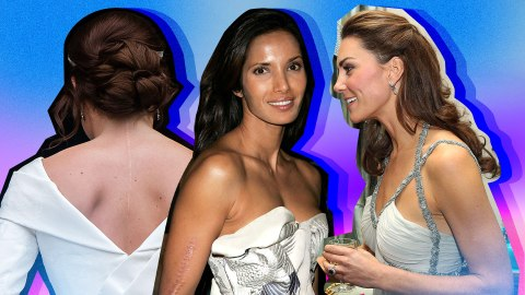 15 Celebrities Who Are Embracing Their Beautiful Scars | StyleCaster