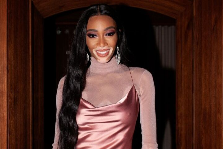 Winnie Harlow Has the Easiest Trick For Nixing Redness On Her Skin