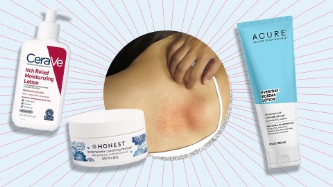 The Absolute Best Over-the-Counter Body Lotions for Eczema-Prone Skin | StyleCaster