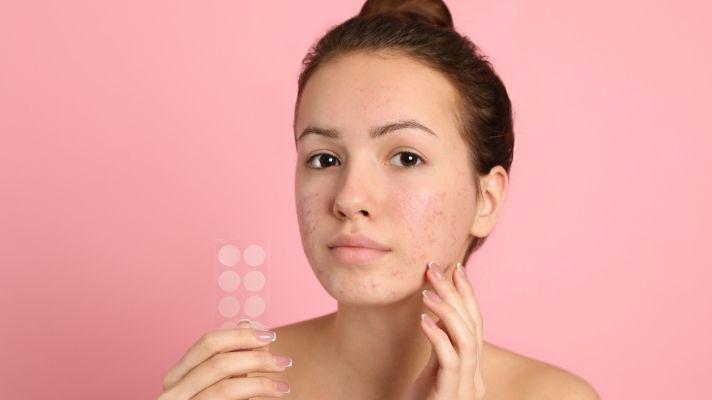 The Best Pimple Stickers to Flatten That Sucker Overnight