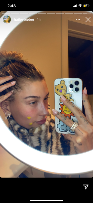 Hailey Bieber skin 1 Even Hailey Bieber Wears Pimple Stickers & You Can Shop the Same Cute Ones RN