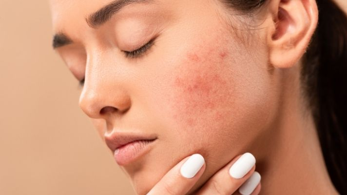 The Best Products to Nix Dark Spots You Can Buy on Amazon