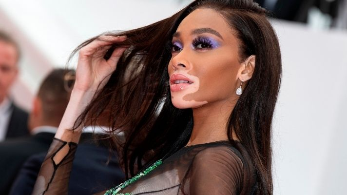 Winnie Harlow Has The Blunt Bangs Of My Dreams In New Paul Mitchell Campaign