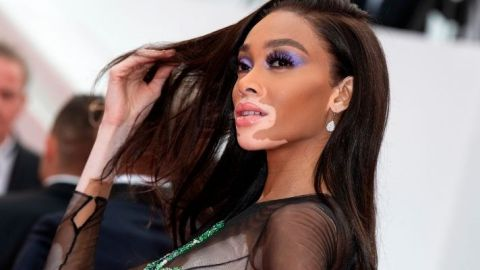 Winnie Harlow Has The Blunt Bangs Of My Dreams In New Paul Mitchell Campaign | StyleCaster