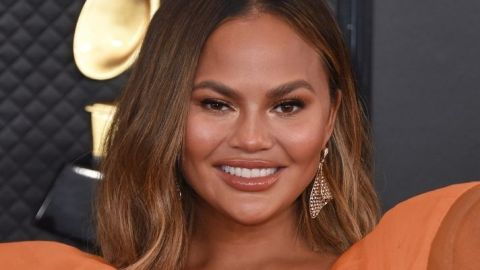 The Pimple Stickers That Chrissy Teigen Swears By Are Available On Amazon | StyleCaster