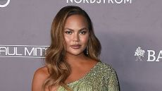 Chrissy Teigen Just Got Real About Her Buccal Fat Removal Surgery
